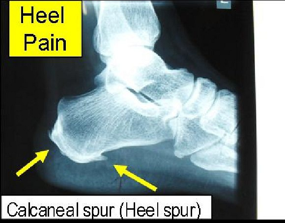 Heel Pain (Calcaneal spur) We treat by acupuncture and herbal plastering. Normally, after 5 to10 sessions, the pain should go away.Read more from my blog: www.drongsweeling.blogspot.com.  Yong Kang Medical Hall Pte Ltd.,永康药行诊所,      Blk 78A, Telok Blangah St 32, #01-05,      Singapore 101078.       Tel:62726400.      Email:ong.swee.ling@gmail.com      Read more details from my blog: www.drongsweeling.blogspot.com (Clinic main website).          Opening Hours:     Monday to Friday (except Thursday): 9.00am to 1.00pm,  2pm to 4.30pm,  6.30pm to 9.30pm;     Thursday and Saturday: 9.00am to 1.00pm,  2pm to 5.00pm;     Sunday and Public Holiday:  2.00pm to 5 pm.     Please note : We are open on most Public Holidays but not all.  We are close     on Christmas day and Chinese New Year day. Please call the Clinic phone number     (Tel: 62726400) for the phone announcement on the every day to check.