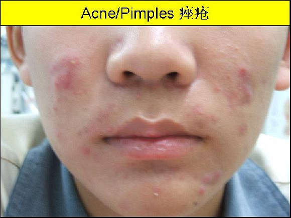 Acne is most common in teenagers.  From my experience treating acne cases, I find that Chinese herbal medicine is very effective in the the treatment of acne. Read more from my blog: www.drongsweeling.blogspot.com       Yong Kang Medical Hall Pte Ltd.,永康药行诊所,      Blk 78A, Telok Blangah St 32, #01-05,      Singapore 101078.       Tel:62726400.      Email:ong.swee.ling@gmail.com      Read more details from my blog: www.drongsweeling.blogspot.com          Opening Hours:     Monday to Friday (except Thursday): 9.00am to 1.00pm,  2pm to 4.30pm,  6.30pm to 9.30pm;     Thursday and Saturday: 9.00am to 1.00pm,  2pm to 5.00pm;     Sunday and Public Holiday:  2.00pm to 5 pm.     Please note : We are open on most Public Holidays but not all.  We are close     on Christmas day and Chinese New Year day. Please call the Clinic phone number     (Tel: 62726400) for the phone announcement on the every day to check.