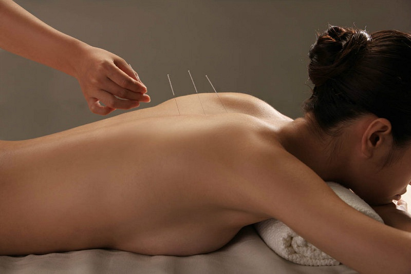 Accupuncture Services